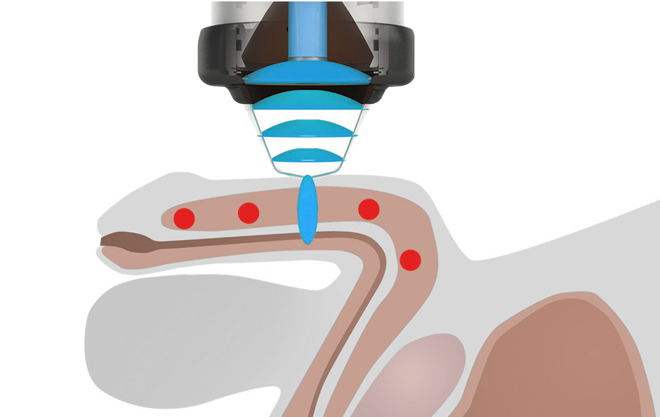 SONICWAVE™ treatment on penis